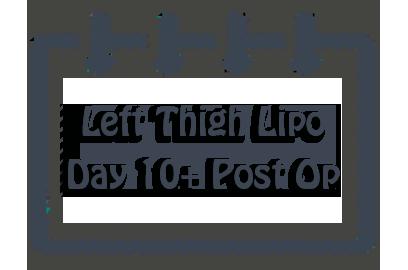 Left Thigh Liposuction: Days 10-21 Post Op