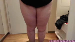 Lipedema Liposuction for Right Thigh Day 1 Post Op