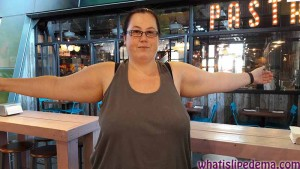 before-arm-liposuction